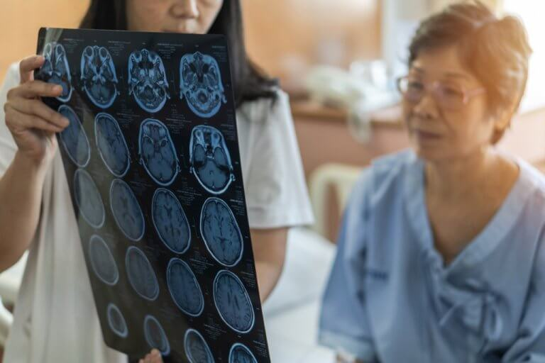 New Vagus Nerve Stimulator Doubles Rate of Improvement After Stroke
